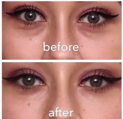 perk-eyes-before-after