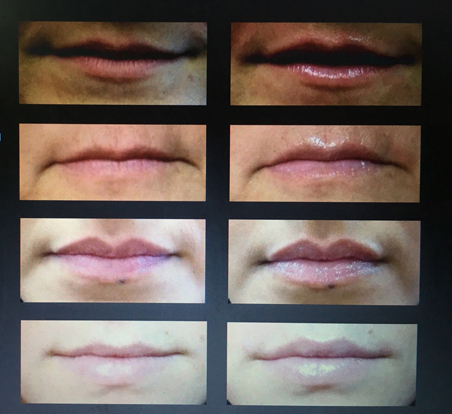 perk-lips-before-after-re