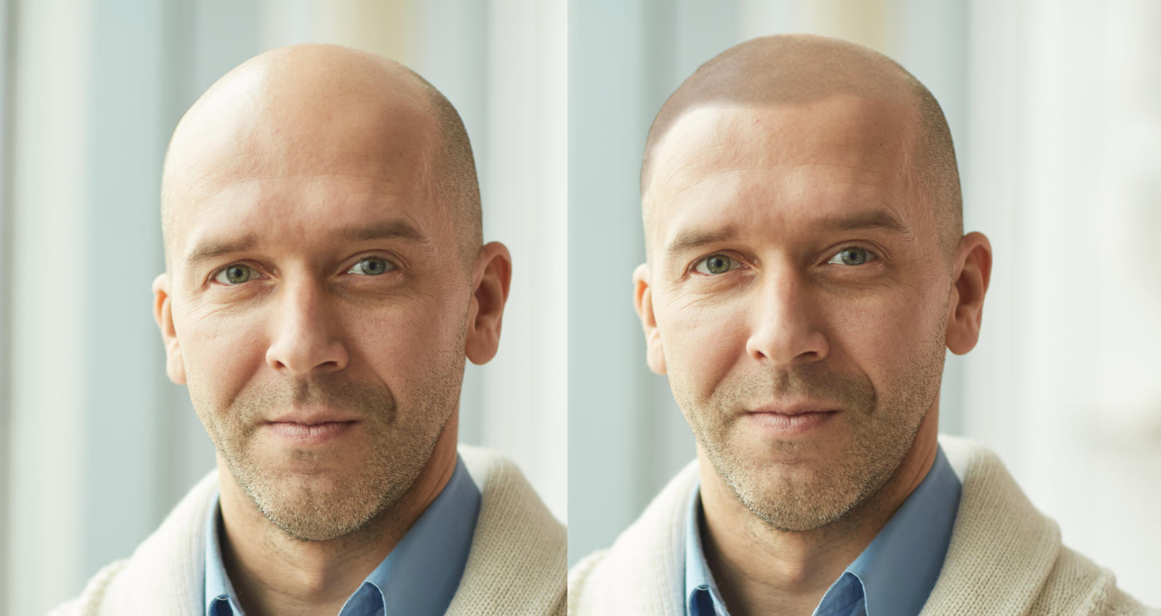 Dramatic Results with Scalp Micropigmentation